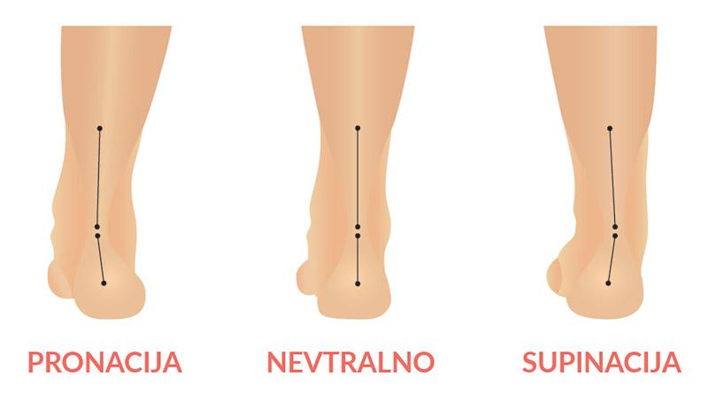 Oblika stopala